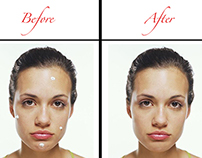 Before and After Acne Touch up