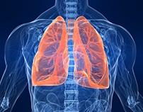 Bolile respiratorii, afectiuni ale plamanilor
