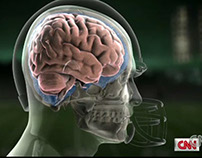 Big Hits Broken Dreams: Concussion animation