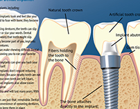 Medical Illustration for Dental Implants