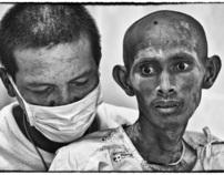 AIDS in Thailand