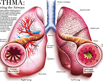 Anatomical Illustration: Asthma + The Lungs