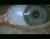 Strach - Microscopy Mood Shots