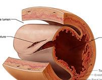 Pregnancy Related Sudden Coronary Artery Disease