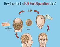 How Important is FUE Post-Operation Care?