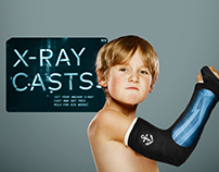 X-Ray Casts