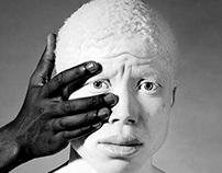 Black And White Fine Art Albino Portrait