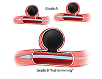 An illustrated grading scheme for aneurysm treatment
