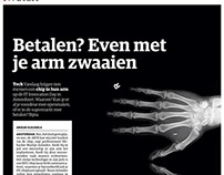 Chipped in the arm | NRC Next