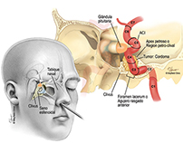 Endoscopic endonasal surgical approach