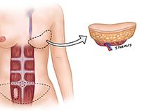 Breast Reconstruction Illustrations
