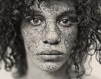 Freckles   by Reto Caduff