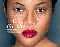Tru Freckles (Published)