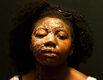 Acid Violence Campaign