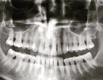 Raggi X | X-ray
