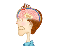 Subdural Hematoma Animation