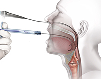 Vocal Fold Injection Series