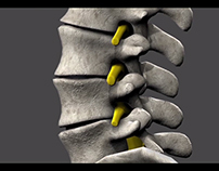 Medical/Spine Research