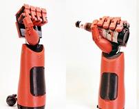3D Printed Phantom Pain Prosthetic Hand