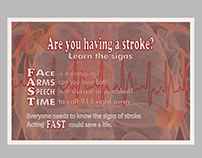 Stroke Knowing the Signs Poster