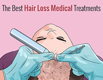 The Best Hair Loss Medical Treatments