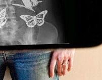 Stomach butterflies. Origin.