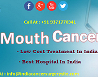 Mouth cancer Treatment Cost in India