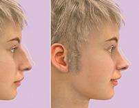 3D Nose Surgery Video