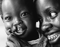 Operation Smile Project, A Journey of Smiles