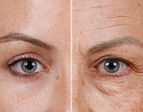 Aging a 25 year old woman to 65
