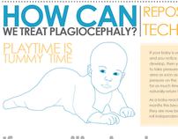 Plagiocephaly Infographic