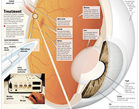 Eye Treatment Infographic
