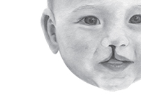 Cleft Lip Textbook Page