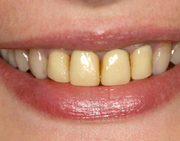 Simple Teeth Whitening