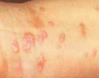 Lichen Planus Treatment by Natural Skin Care Products
