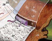 """""""Cirugía microincisional del glaucoma"""", Lavín y Alcocer"""