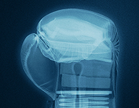 NESCAFE X-Ray