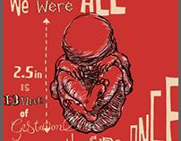 Fetus Packaging