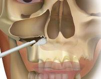 Southern Implants Dental Iplant Illustrations