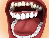 Dental illustrations