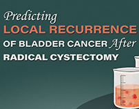 Local Recurrence of Bladder Cancer after RARC Video