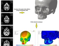 Modelling of the human skull and FEA in ANSYS