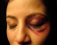 SFX Bruises