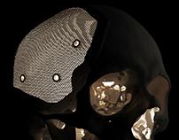 Lattice cranioplasty design