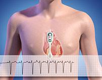 Carnation Ambulatory Heart Monitor Animation