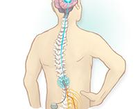 Neurostimulation Illustrations