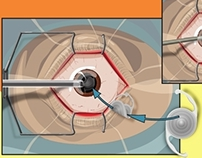 Cataract Surgery Process Illustration