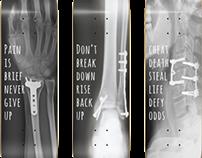 """Still Alive"" Skate Deck Series (print)"