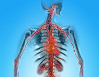 Medical Illustration for KPA Advertising
