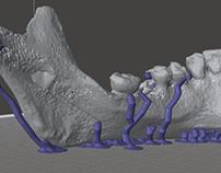 Impresión 3D aplicada a la odontología